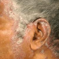 Как восстановить волосы при псориазе головы